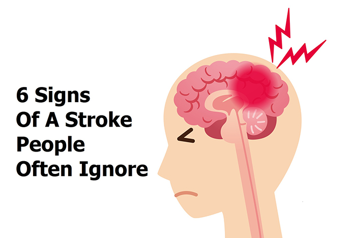 6 Signs Of A Stroke People Often Ignore